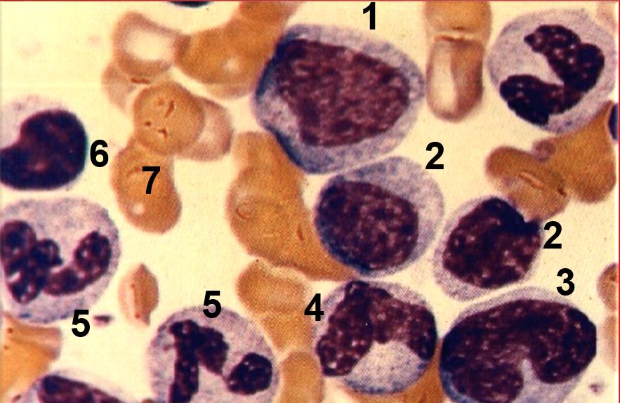 esfregacos-hematologicos