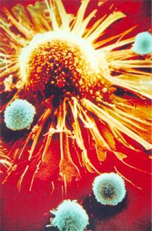 Linfócitos T-CD8 (azul) atacando uma célula tumoral (amarela)