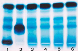 Figura 3: Eletroforese de proteínas séricas em dois casos diferentes de mieloma (1) e (2), comparadas com proteínas normais (3 a 6). No caso 1 há uma gama monoclonal na região típica de IgG, com 35% de concentração. No caso 2 a gama monoclonal está posicionada na região típica de IgA e tem concentração de 65%.