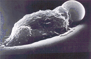 Figura 7: Um esferócito é fagocitado por macrófago no sistema reticulo-endotelial do baço. Microscopia eletrônica de varredura obtida pelo Prof. Marcel Bessis.