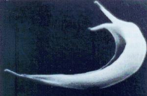 Figura 8: Célula falciforme em microscopia eletrônica de varredura.
