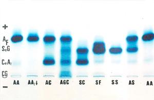 Figura 10: Eletroforese alcalina em gel de agarose com muitas hemoglobinas variantes, entre elas os genótipos de Hb AS, SF, SS e SC, os três últimos agrupados como doença falciforme.