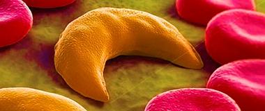 1-doenca falciforme